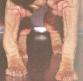 Картина при синдроме короткой локтевой кости