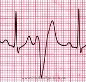 Аритмия сердца у собак