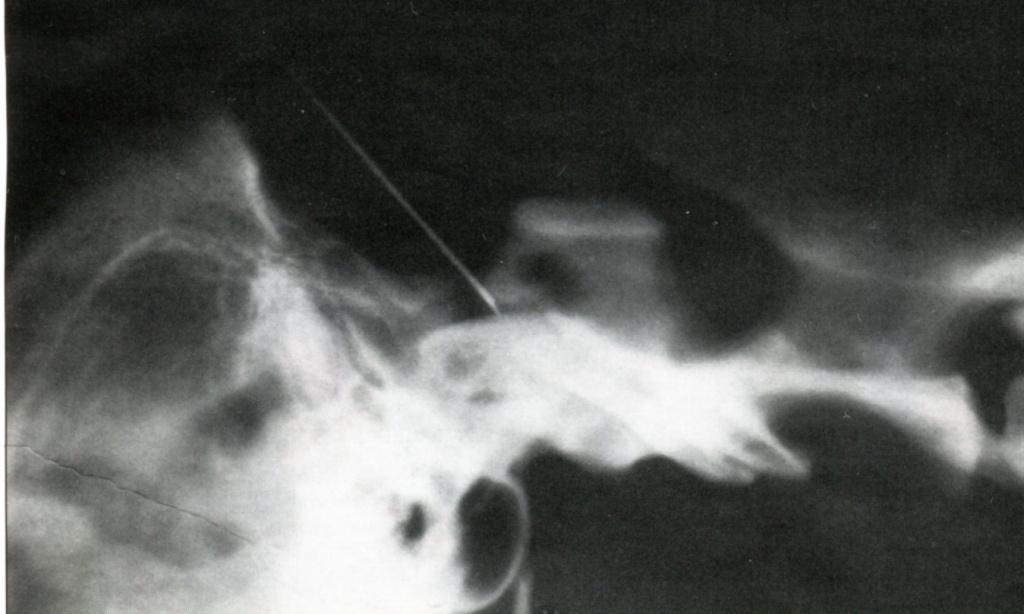 игла видна в субарахноидальном пространстве краниальной части позвоночного столба