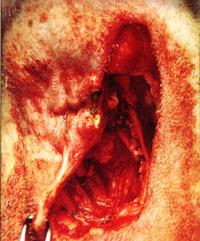 удаление поврежденных тканей может потребоваться массивное вырезание