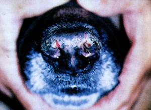 Депигментация и эрозии носа при дискоидной эритемной волчанке.