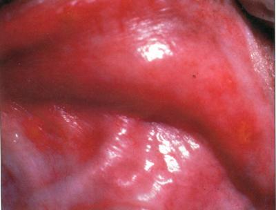 Мелкие кровоизлияния на слизистую оболочку собаки с эрлихиозом, вызванным Е. canis.