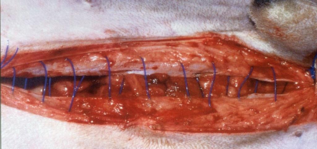 прямая мышца живота слабо ушивается непрерывным швом полипропиленовой нитью