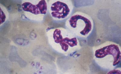 Мазок периферической крови собаки, больной бабезиозом. В эритроцитах видны клетки Babesia canis.