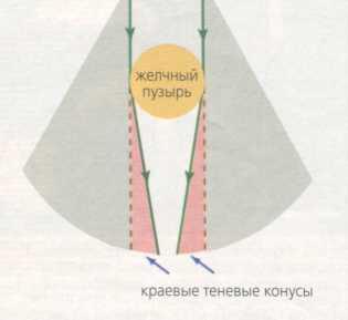 Схематическое изображение феноменов, включающихся в формирование артефактов в виде теневых краевых акустических конусов
