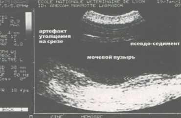 Артефакт утолщения поперечного среза мочевого пузыря по причине псевдоосадка
