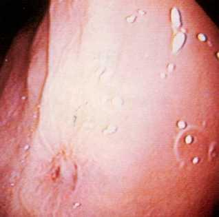 Изъязвления слизистой желудка у кошки