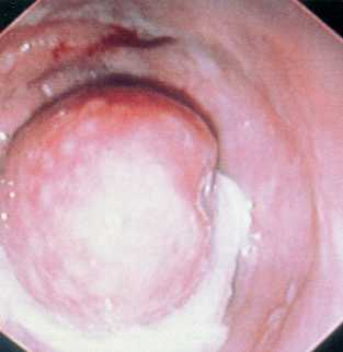 Илео-колональный сфинктер у трехмесячного доберман- пинчера в острым парвовирусным энтеритом