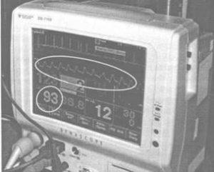 Пульсоксиметр показывает график