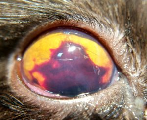 Гифема - кровоизлияние в переднюю камеру глаза
