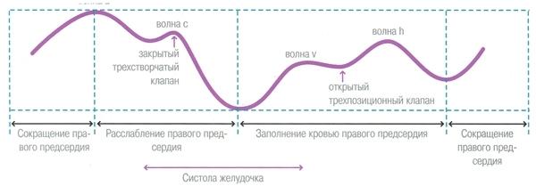 Сопоставление кривой центрального венозного давления с деятельностью сердца